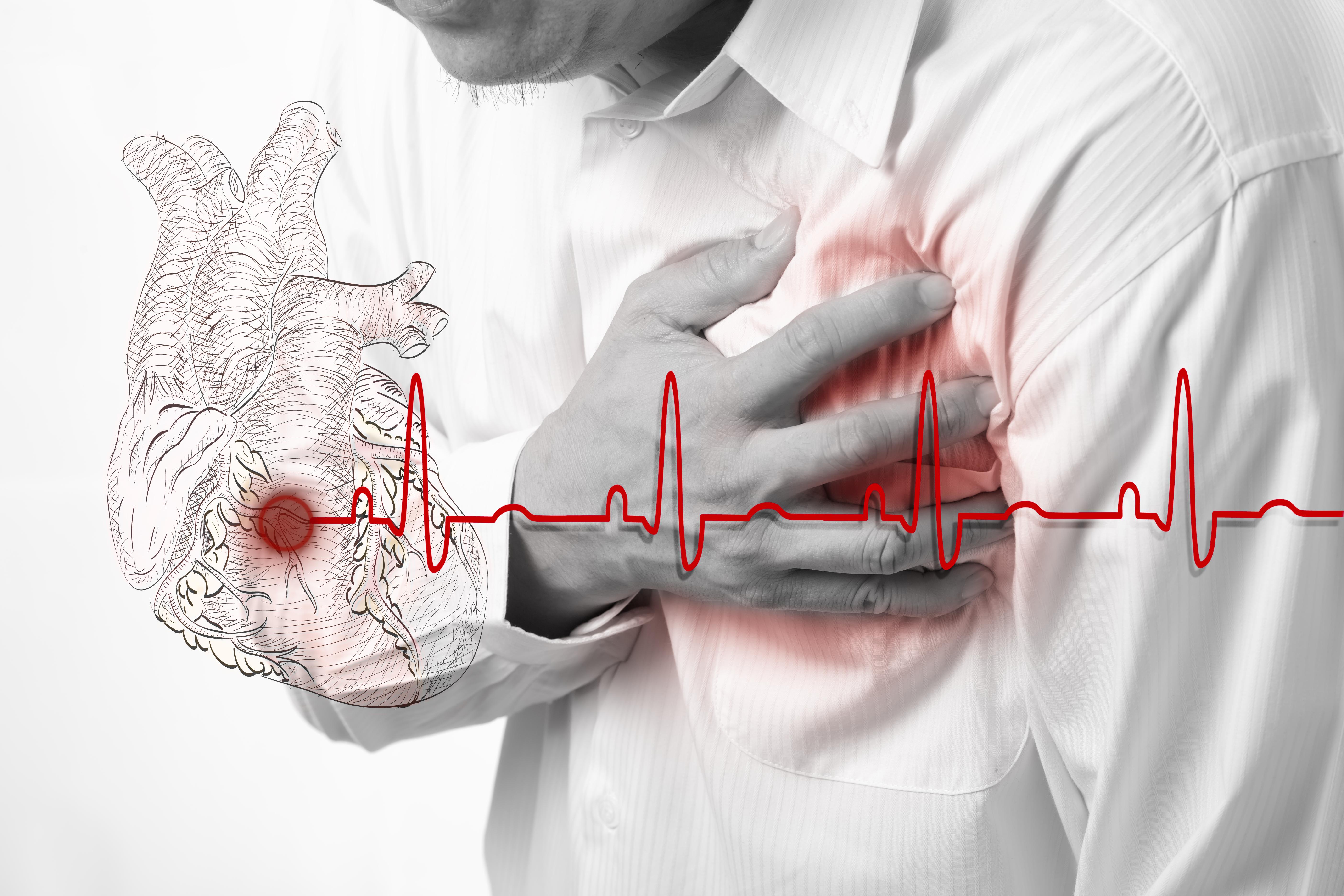 AB'de 8 ölümden 1'i kalp krizinden, Avrupa Birliği'nde kalp krizi vakalarının her yıl 8 kişiden